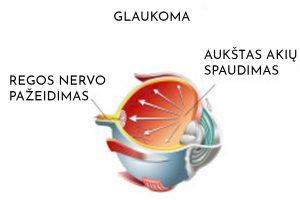 Glaukoma pažeidimai