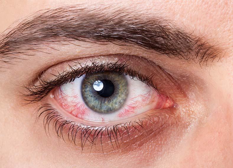 Paraudusios akys akiu klinika
