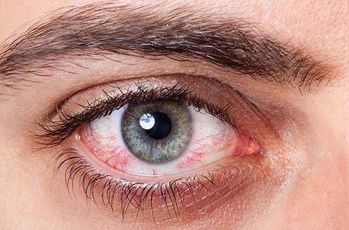 Konjuktyvyto pažeista akis